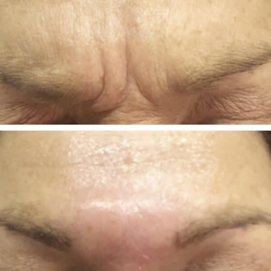 Botox Anti Wrinkle Treatment