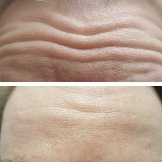 Botox Antri Wrinkle Injections