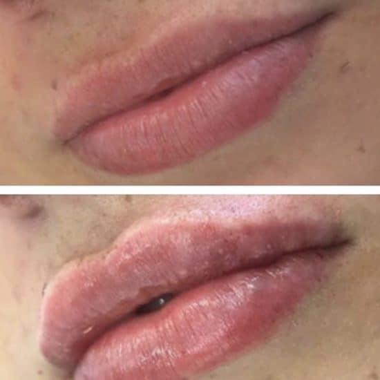 Lip Fillers & Lip Enhancements