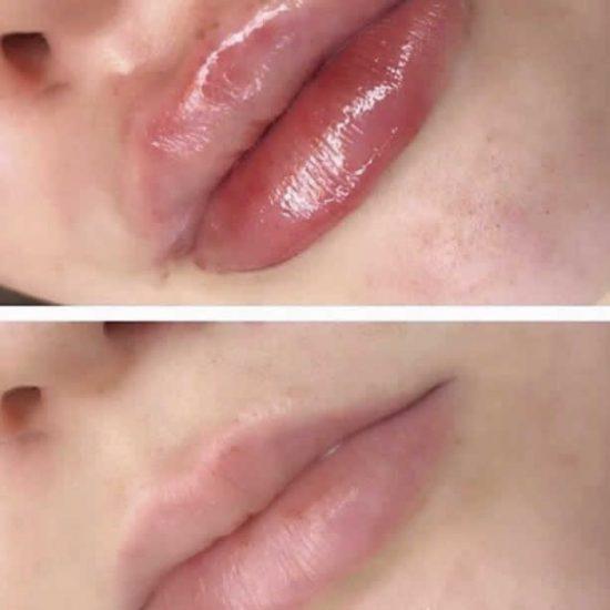 Lip Fillers & Lip Enhancement